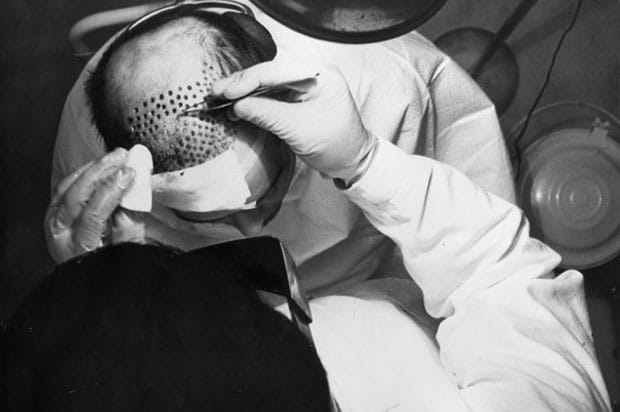 The History of Hair Transplant