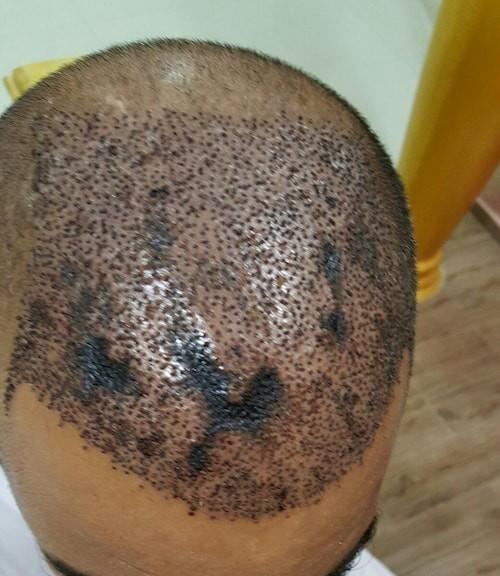 هل الـ necrosist من الآثار الجانبية لزراعة الشعر؟ 1