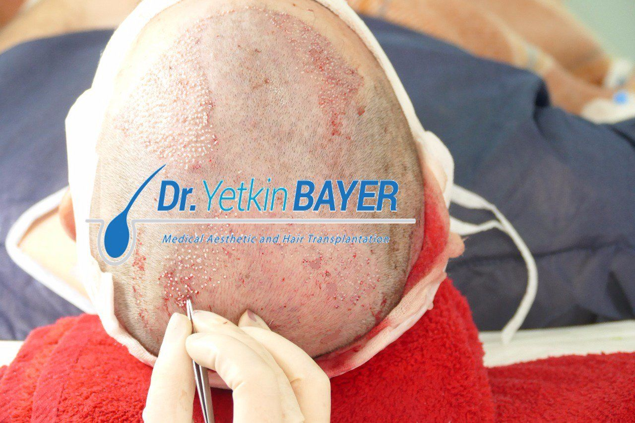 Hair Transplant in Turkey: Step by Step