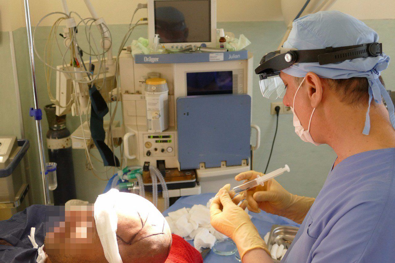Anesthesia During Hair Transplant in Turkey