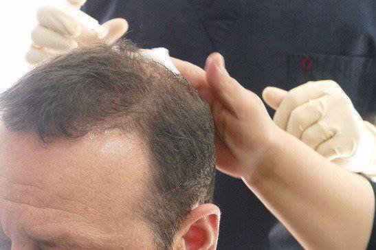 لماذا زراعة الشعر