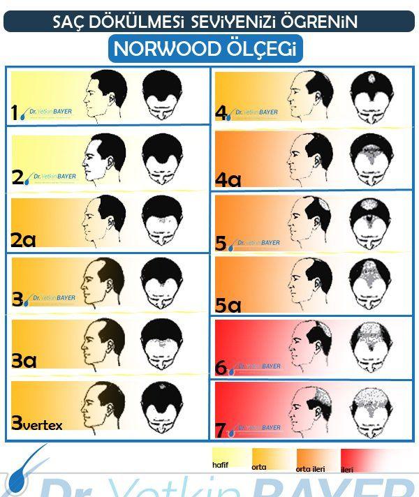 norwood ölçeği şeması