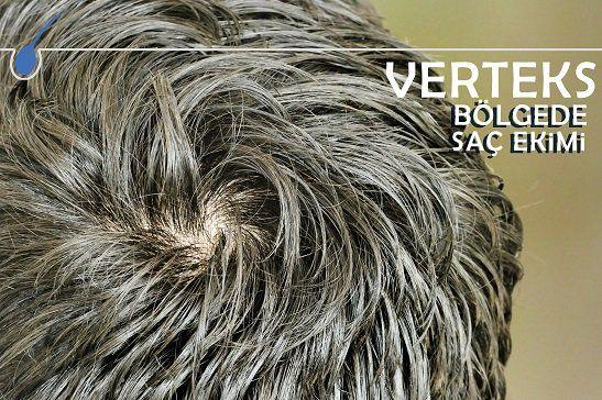 Saç ekiminde verteks bölge ayrı bir öneme sahiptir.