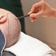 نظرة معمقة حول عمليات زراعة الشعر في تركيا