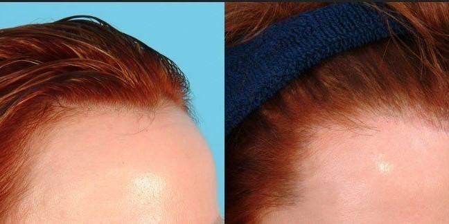 نتيجة بحث الصور عن أهم المعلومات عن عملية زراعة الشعر في تركيا