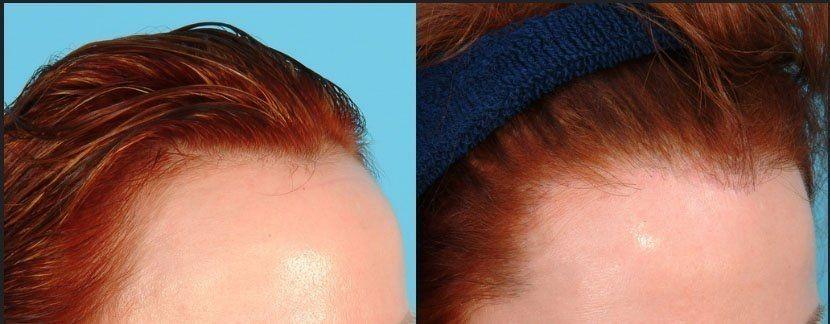 زراعة الشعر للسيدات