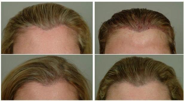 صورة توضيحية لزراعة الشعر للنساء