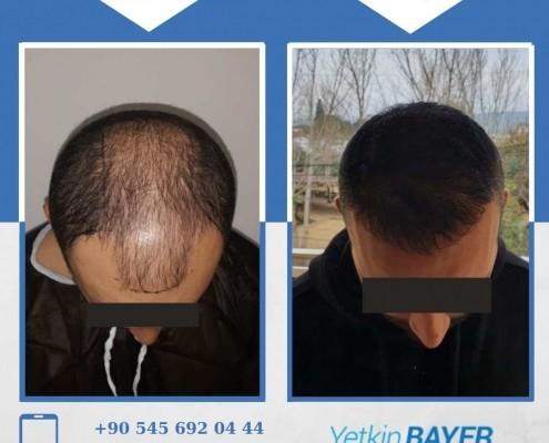 زراعة الشعر قبل وبعد بالصور والفيديو 12