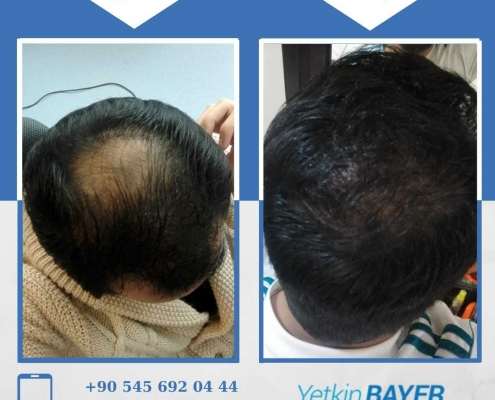 زراعة الشعر قبل وبعد بالصور والفيديو 22