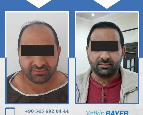 زراعة الشعر قبل وبعد بالصور والفيديو 24
