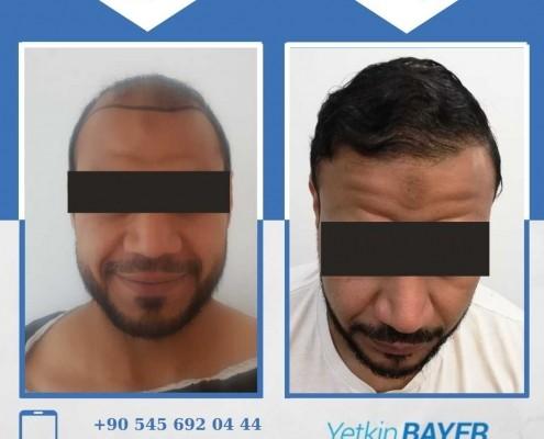 زراعة الشعر قبل وبعد بالصور والفيديو 25