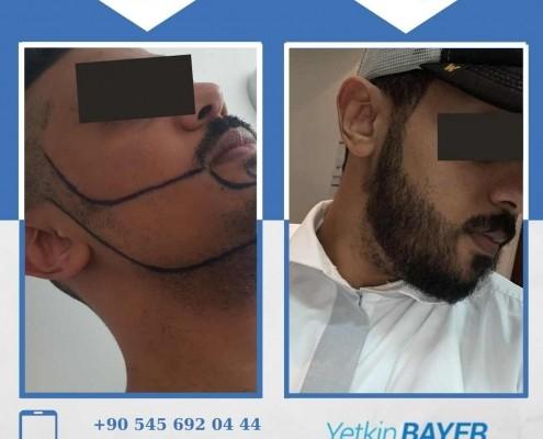 زراعة الشعر قبل وبعد بالصور والفيديو 27