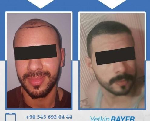 زراعة الشعر قبل وبعد بالصور والفيديو 28