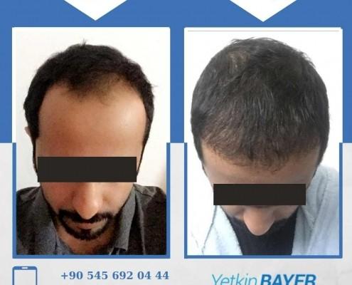 زراعة الشعر قبل وبعد بالصور والفيديو 29