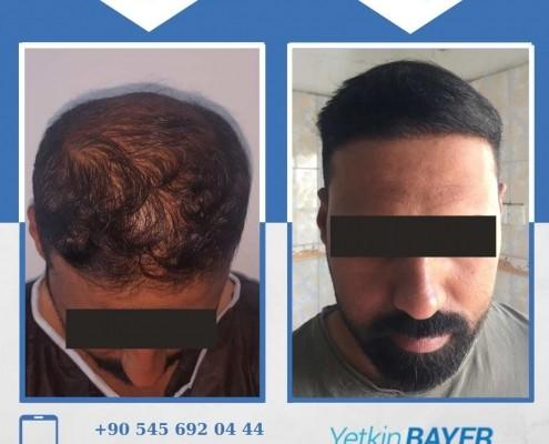 زراعة الشعر قبل وبعد بالصور والفيديو 30