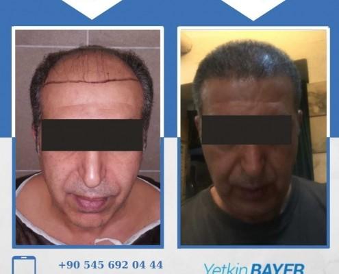 زراعة الشعر قبل وبعد بالصور والفيديو 13