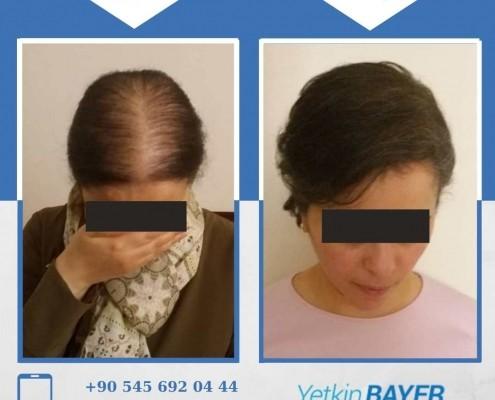 زراعة الشعر قبل وبعد بالصور والفيديو 31