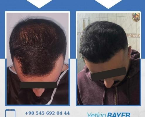 زراعة الشعر قبل وبعد بالصور والفيديو 32