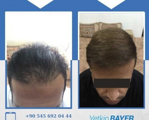 زراعة الشعر قبل وبعد بالصور والفيديو 33