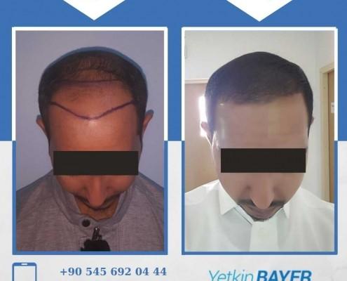 زراعة الشعر قبل وبعد بالصور والفيديو 34