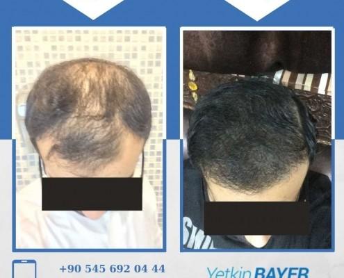 زراعة الشعر قبل وبعد بالصور والفيديو 35
