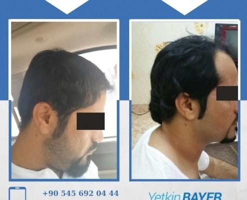زراعة الشعر قبل وبعد بالصور والفيديو 36