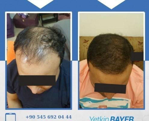زراعة الشعر قبل وبعد بالصور والفيديو 37