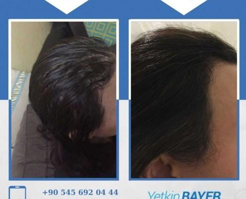زراعة الشعر قبل وبعد بالصور والفيديو 39