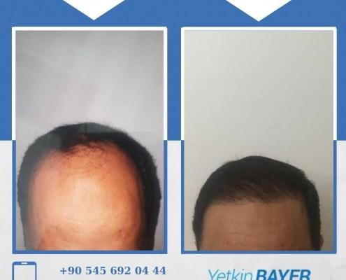 زراعة الشعر قبل وبعد بالصور والفيديو 40