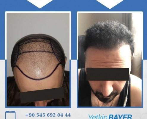زراعة الشعر قبل وبعد بالصور والفيديو 14