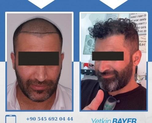 زراعة الشعر قبل وبعد بالصور والفيديو 41