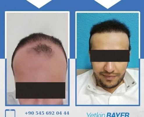 زراعة الشعر قبل وبعد بالصور والفيديو 44