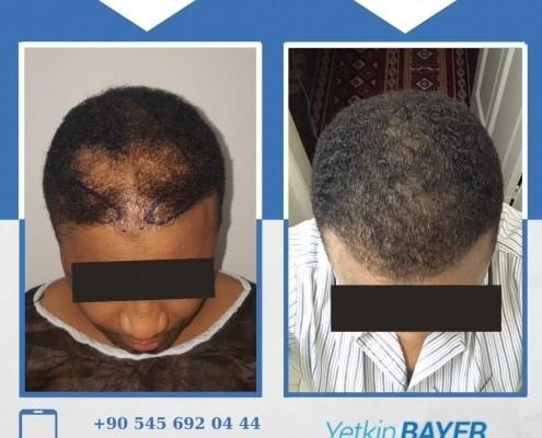 زراعة الشعر قبل وبعد بالصور والفيديو 15