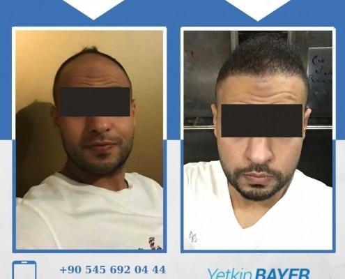 زراعة الشعر قبل وبعد بالصور والفيديو 47