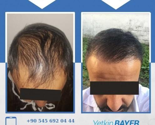 زراعة الشعر قبل وبعد بالصور والفيديو 16