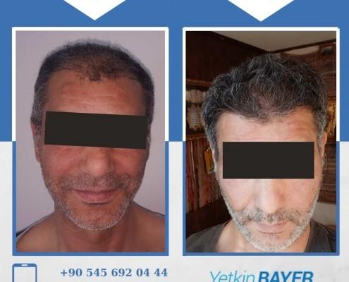 زراعة الشعر قبل وبعد بالصور والفيديو 17