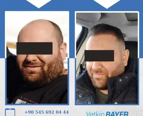 زراعة الشعر قبل وبعد بالصور والفيديو 18
