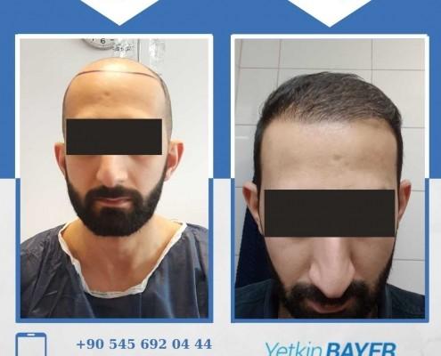 زراعة الشعر قبل وبعد بالصور والفيديو 19
