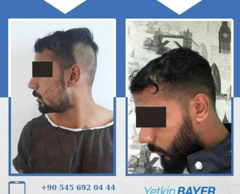 زراعة الشعر قبل وبعد بالصور والفيديو 20
