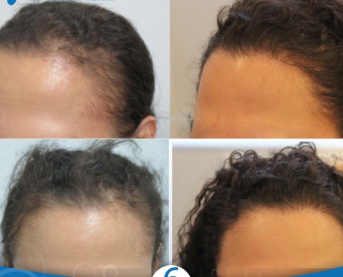 زراعة الشعر للنساء تشكل الحل الدائم لاستعادة الشعر 2