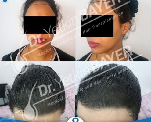 زراعة الشعر للنساء تشكل الحل الدائم لاستعادة الشعر 4