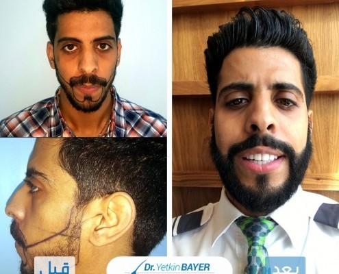 زراعة الشعر قبل وبعد بالصور والفيديو 10