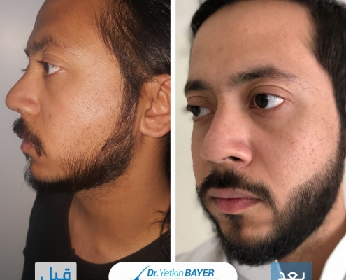 زراعة الشعر قبل وبعد بالصور والفيديو 9