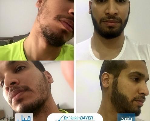 زراعة الشعر قبل وبعد بالصور والفيديو 6