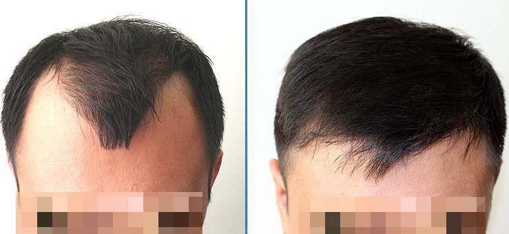 صورة توضيحة لنتائج زراعة الشعر عموما