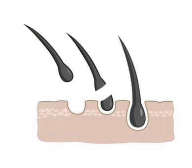تأثير تساقط الشعر الكربي على دورة نمو الشعر