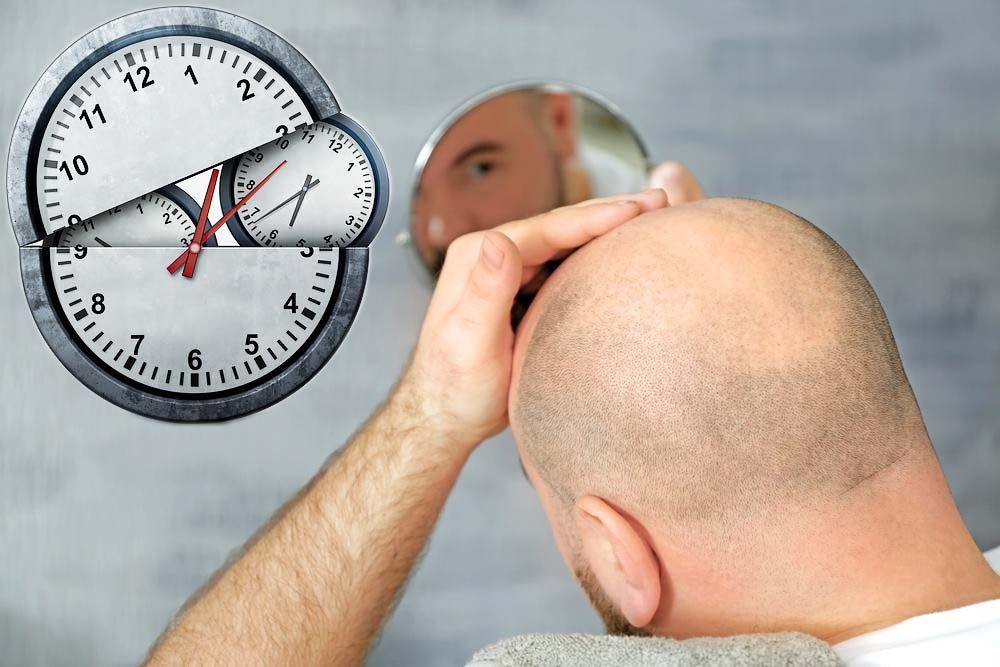 كم تستغرق عملية زراعة الشعر؟
