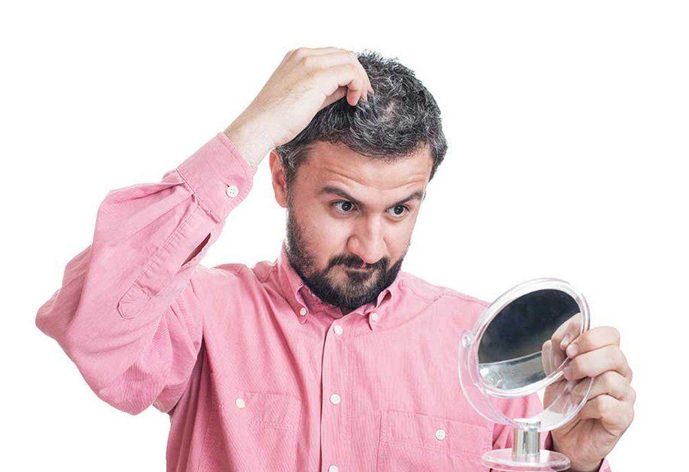 زراعة الشعر الابيض