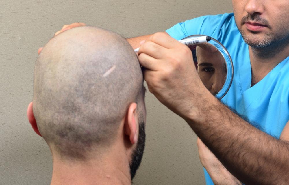 زراعة الشعر للندوب والجروح