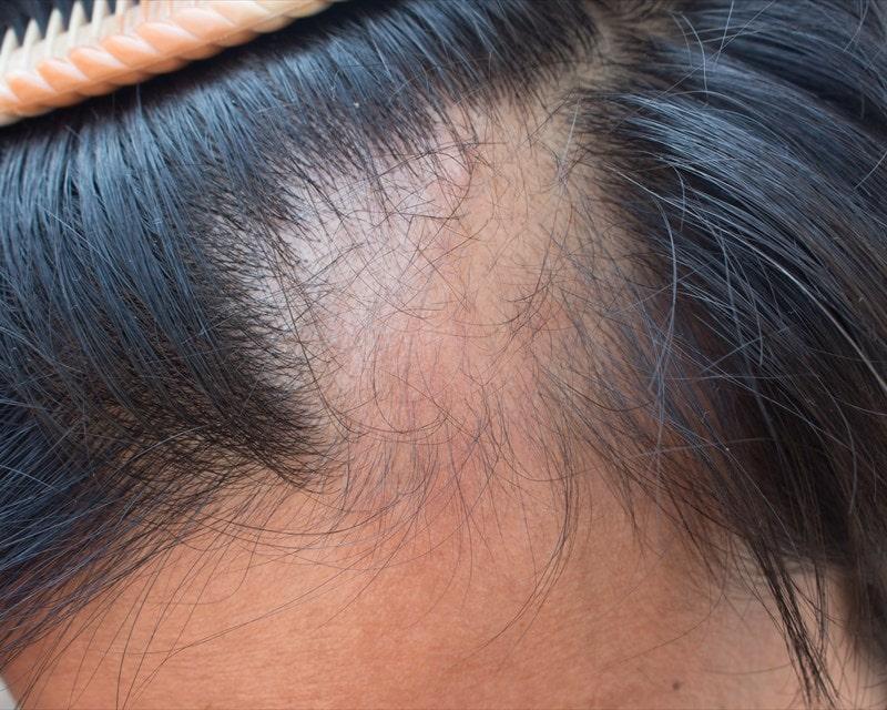 الجوانب النفسية وزراعة الشعر